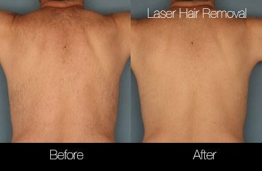 Laser Hair Removal - Patient Before and After Gallery – Photo 39
