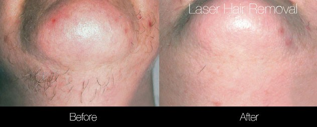 Laser Hair Removal - Patient Before and After Gallery – Photo 41