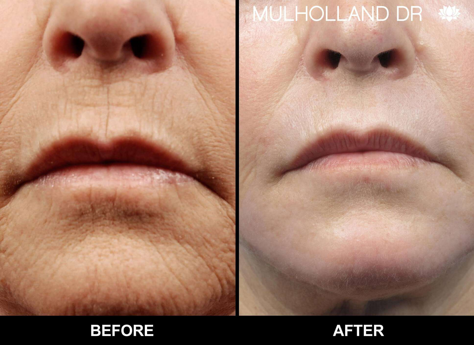 Microdermabrasion - Before and After Gallery – Photo 42