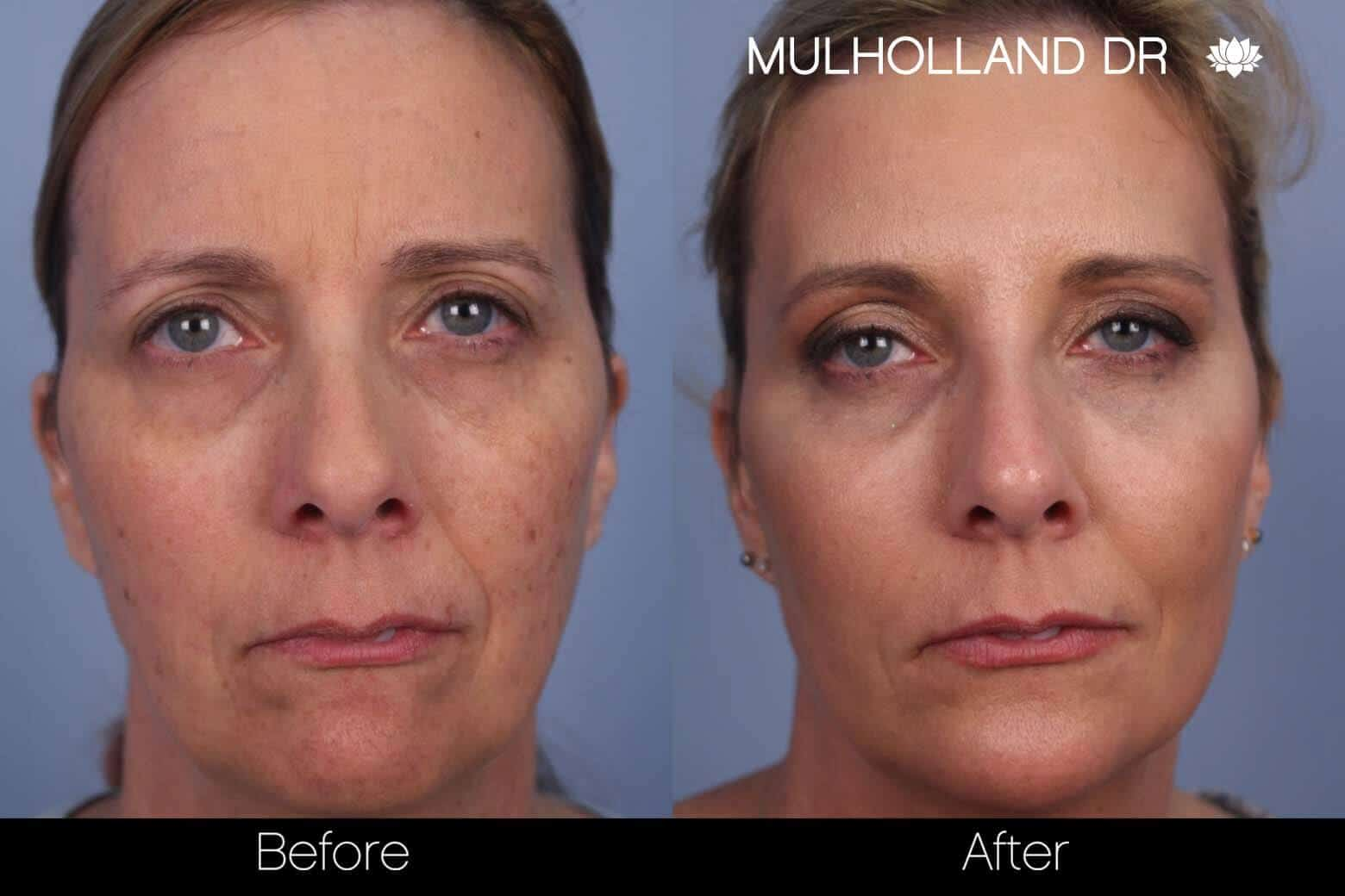Laser Skin Resurfacing - Before and After Gallery – Photo 61