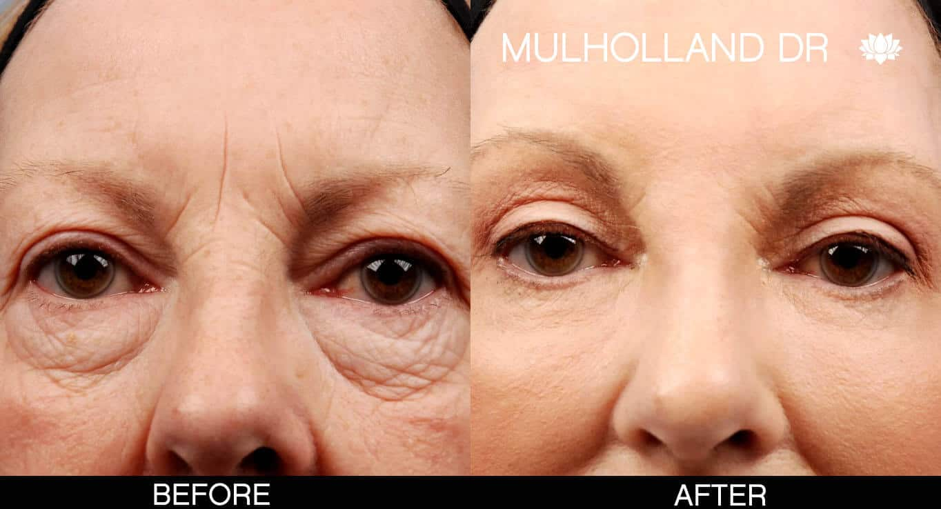 Laser Skin Resurfacing - Before and After Gallery – Photo 12