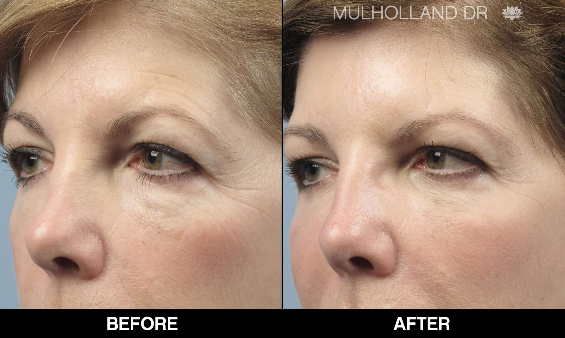Laser Skin Resurfacing - Before and After Gallery – Photo 69