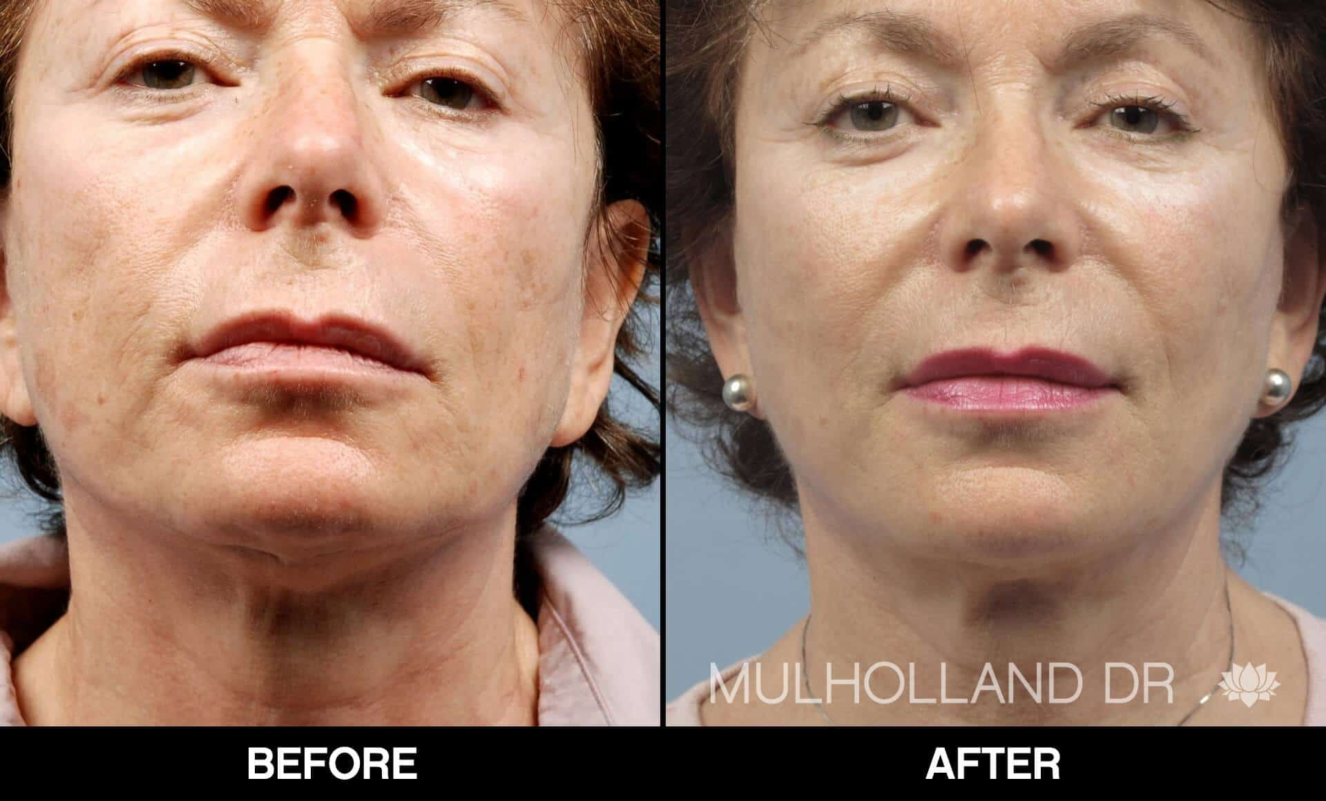 Laser Skin Resurfacing - Before and After Gallery – Photo 54