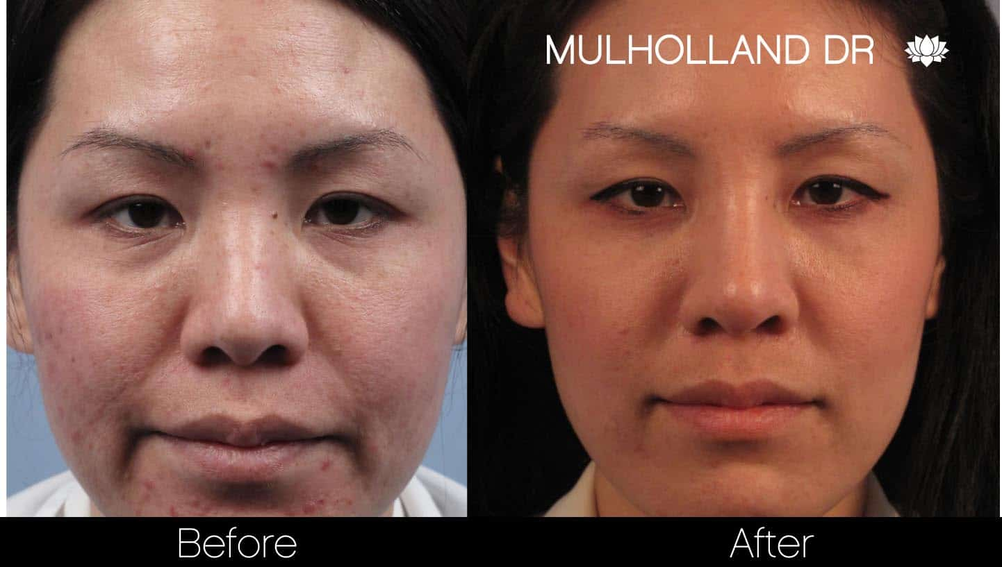 Microdermabrasion - Before and After Gallery – Photo 58
