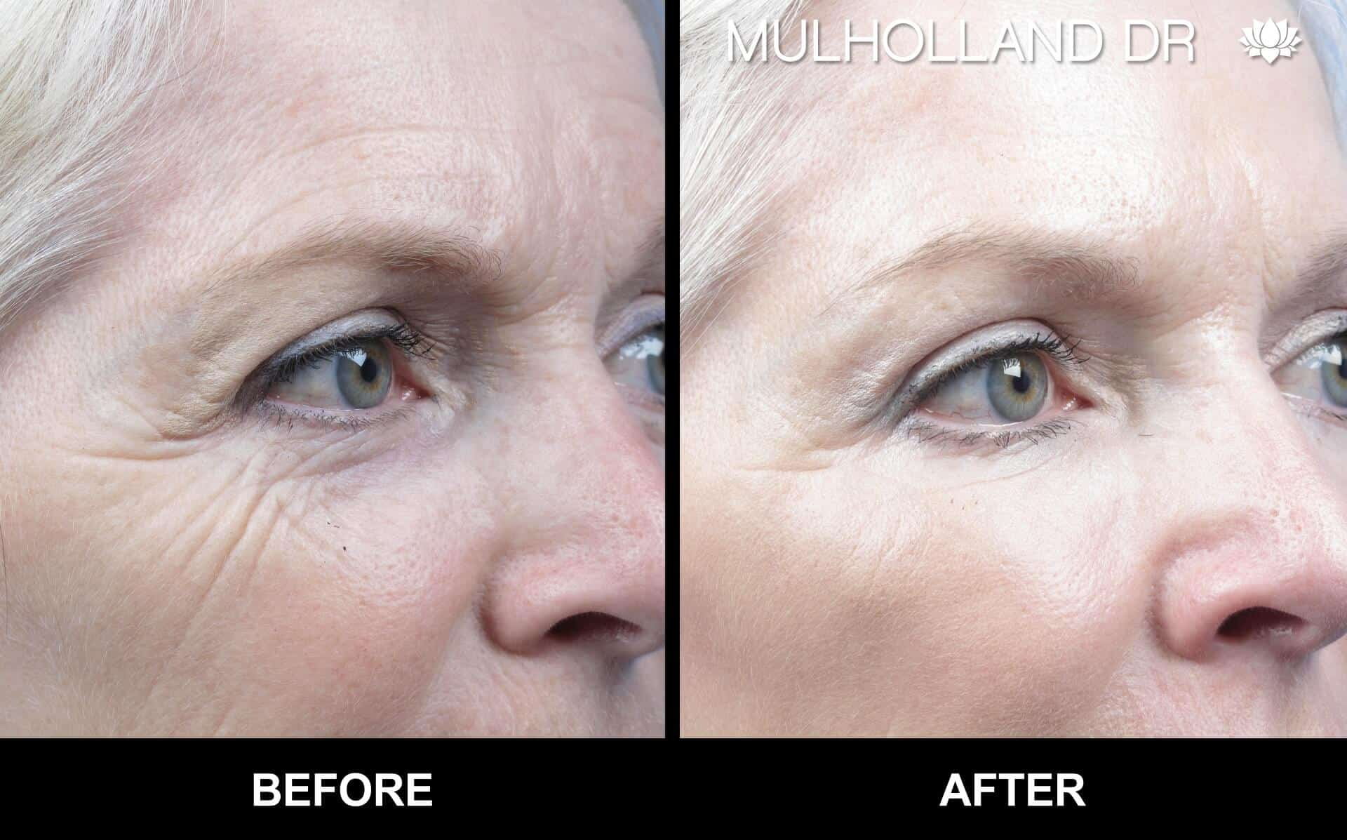 Laser Skin Resurfacing - Before and After Gallery – Photo 14
