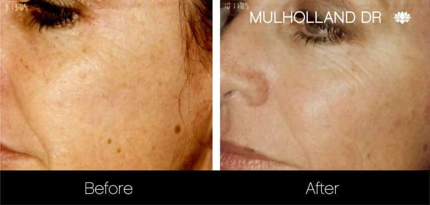 Microdermabrasion - Before and After Gallery – Photo 23