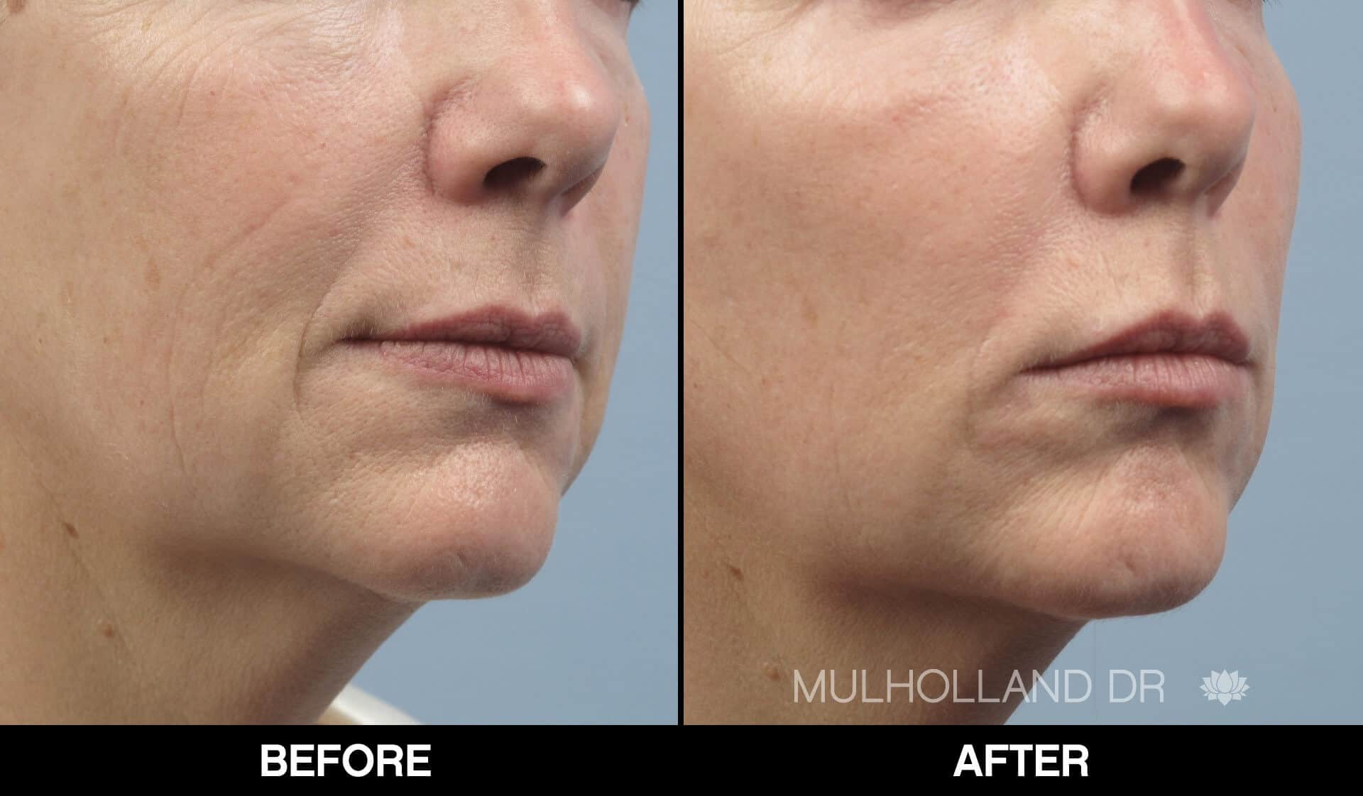 Laser Skin Resurfacing - Before and After Gallery – Photo 72