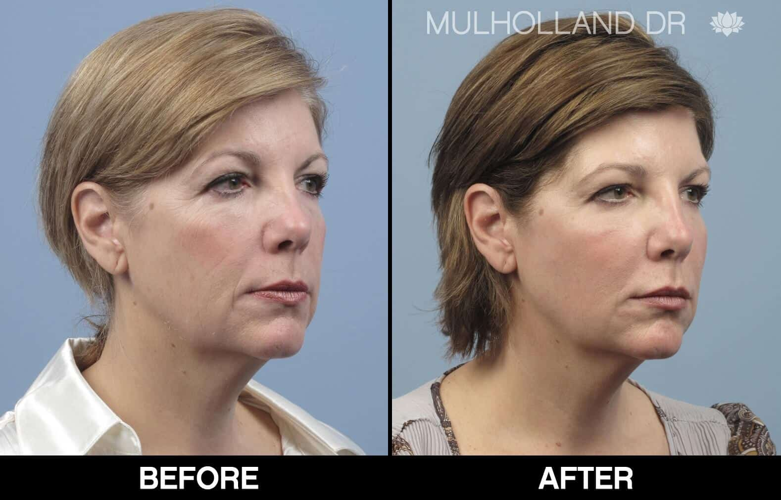 Laser Skin Resurfacing - Before and After Gallery – Photo 74
