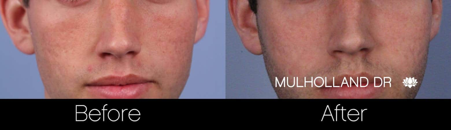 Microdermabrasion - Before and After Gallery – Photo 62