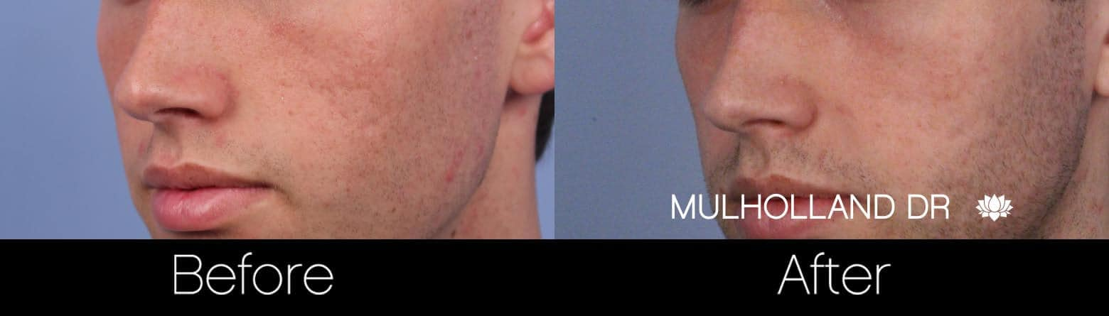 Microdermabrasion - Before and After Gallery – Photo 63