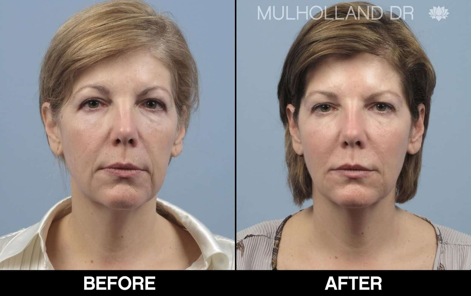 Laser Skin Resurfacing - Before and After Gallery – Photo 77