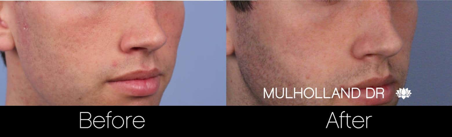 Microdermabrasion - Before and After Gallery – Photo 64