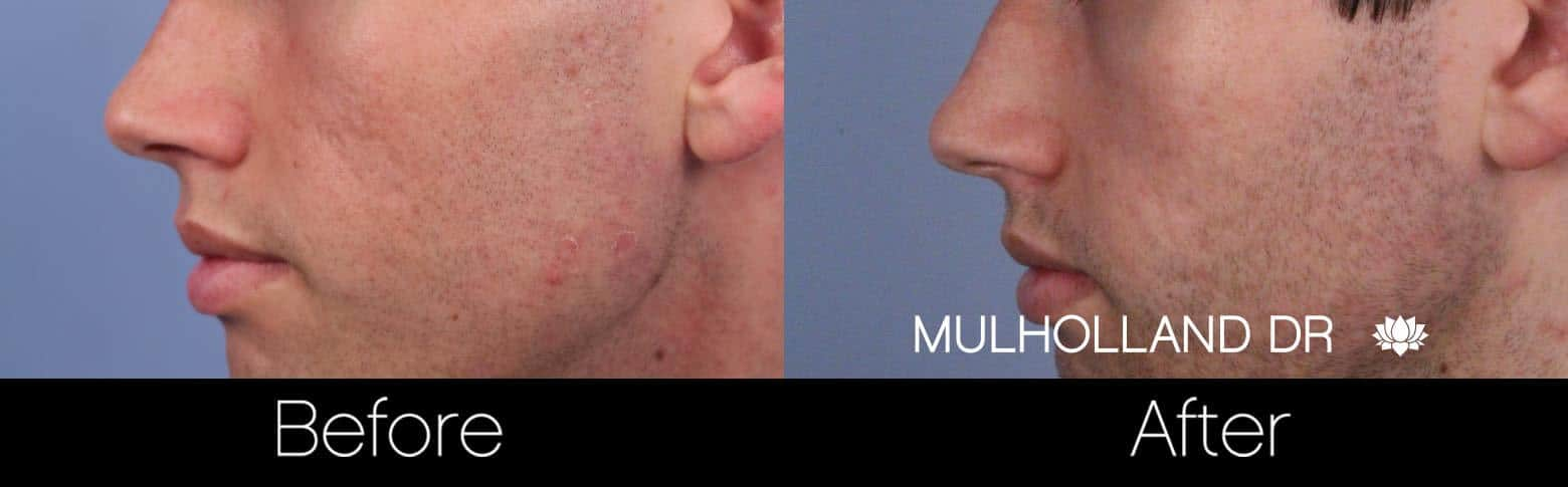 Microdermabrasion - Before and After Gallery – Photo 65