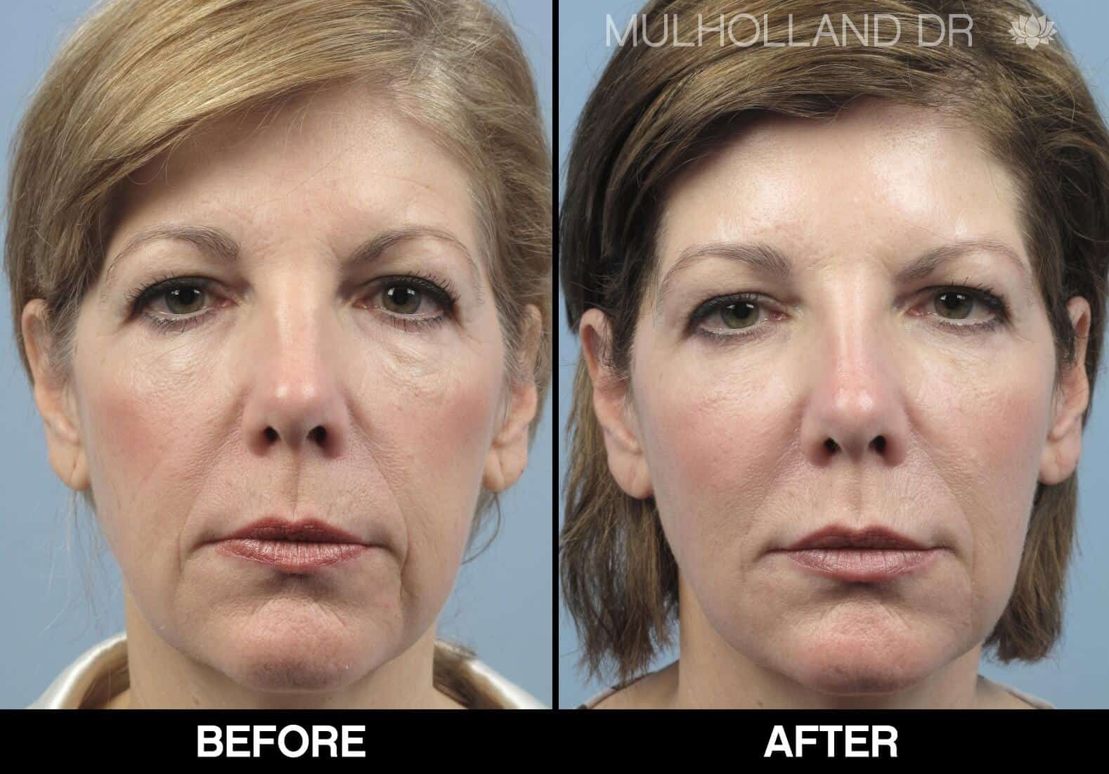 Laser Skin Resurfacing - Before and After Gallery – Photo 79
