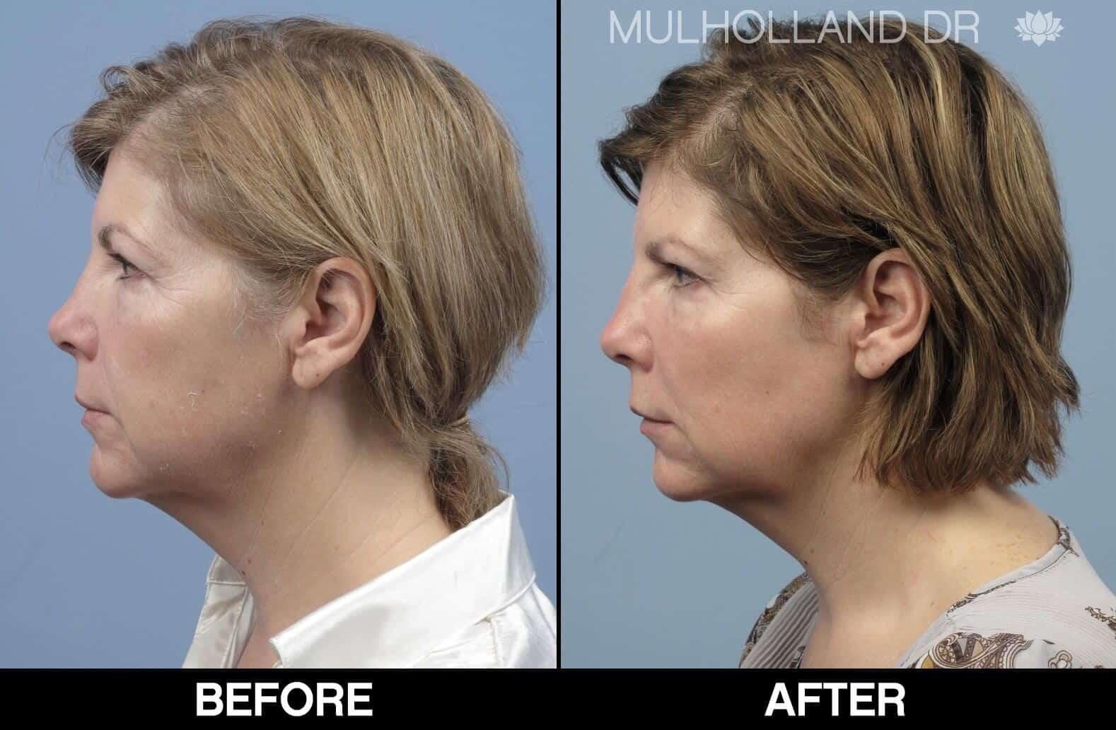 Laser Skin Resurfacing - Before and After Gallery – Photo 80