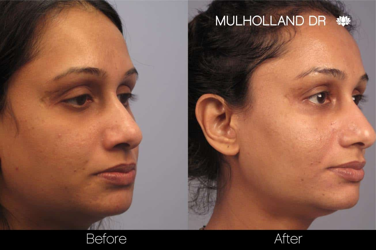 Microdermabrasion - Before and After Gallery – Photo 68