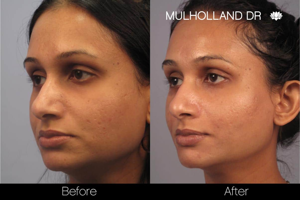 Microdermabrasion - Before and After Gallery – Photo 69