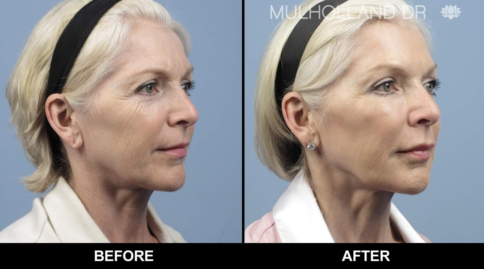 Laser Skin Resurfacing - Before and After Gallery – Photo 29