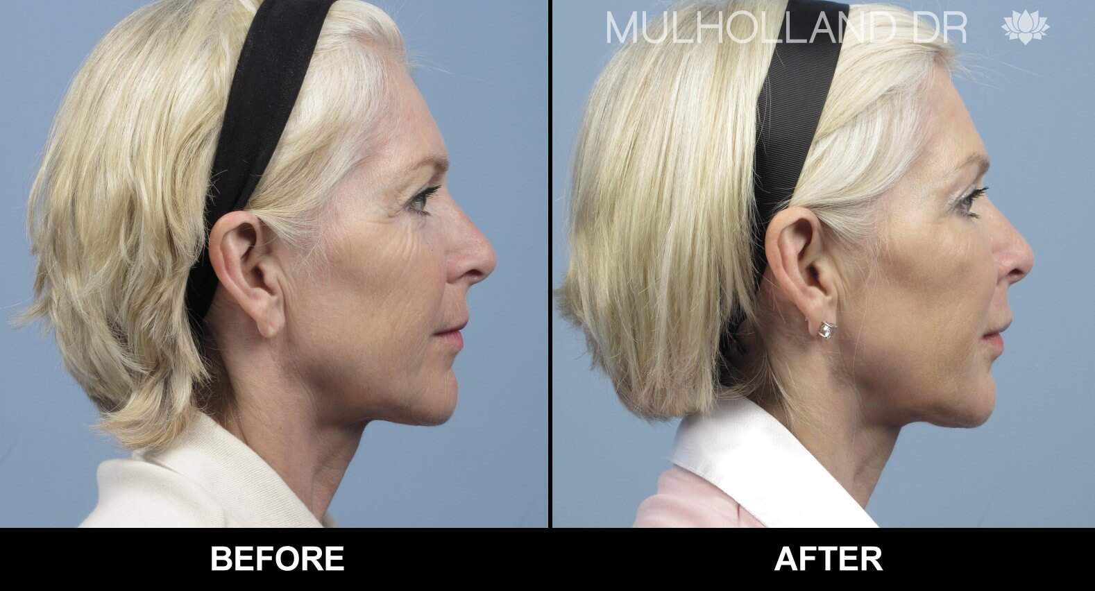 Laser Skin Resurfacing - Before and After Gallery – Photo 30