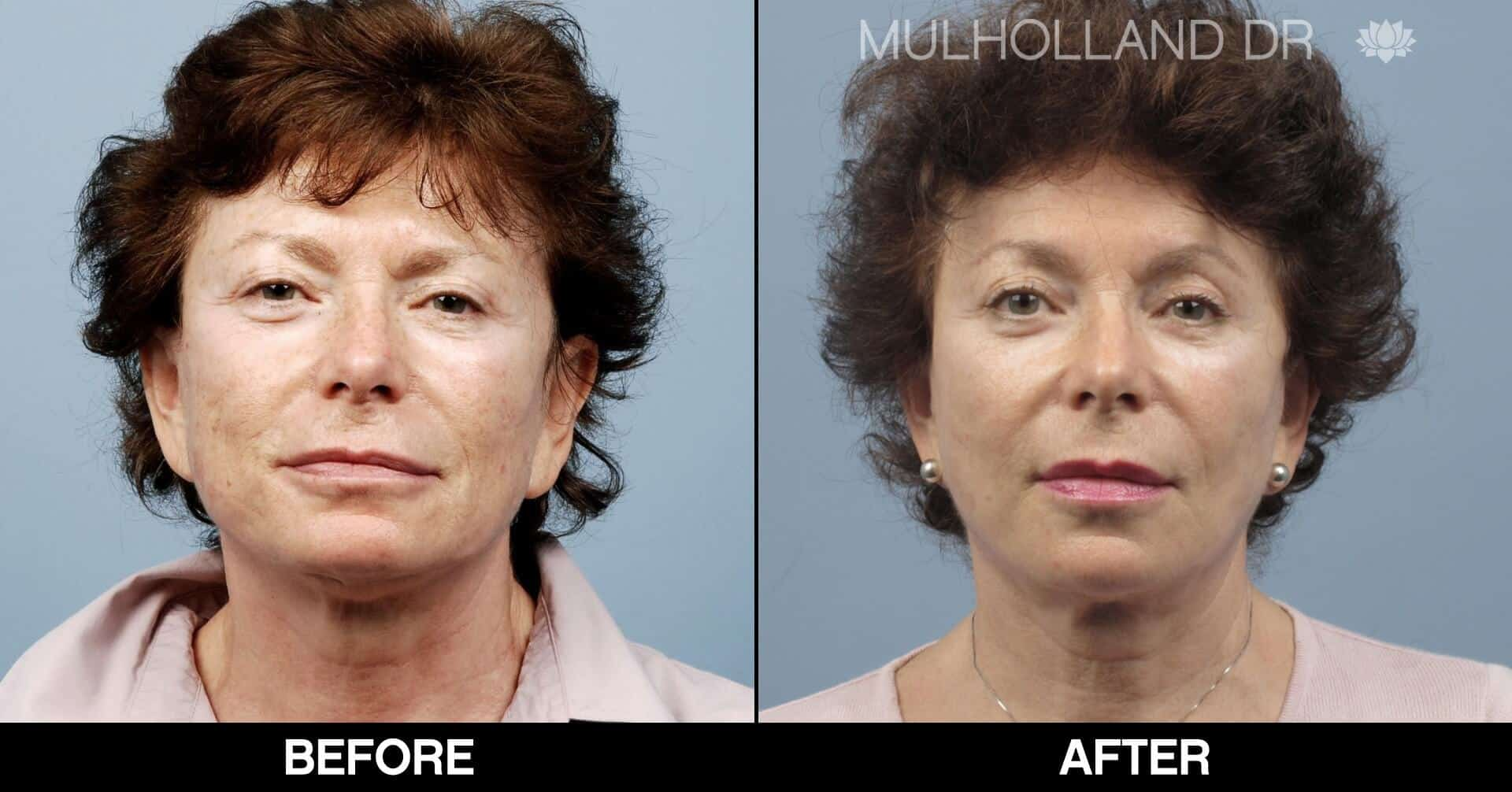 Laser Skin Resurfacing - Before and After Gallery – Photo 55