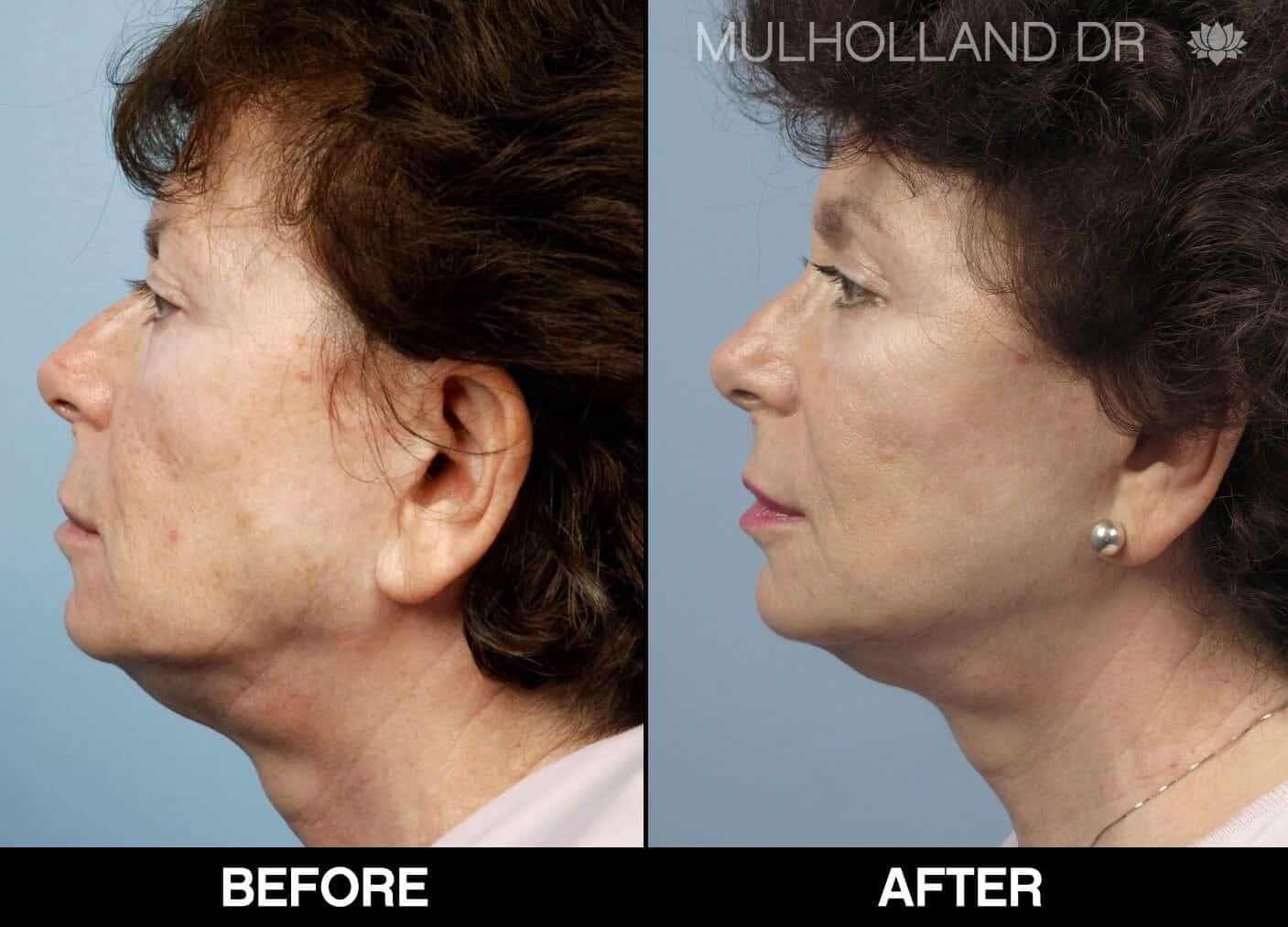 Laser Skin Resurfacing - Before and After Gallery – Photo 56