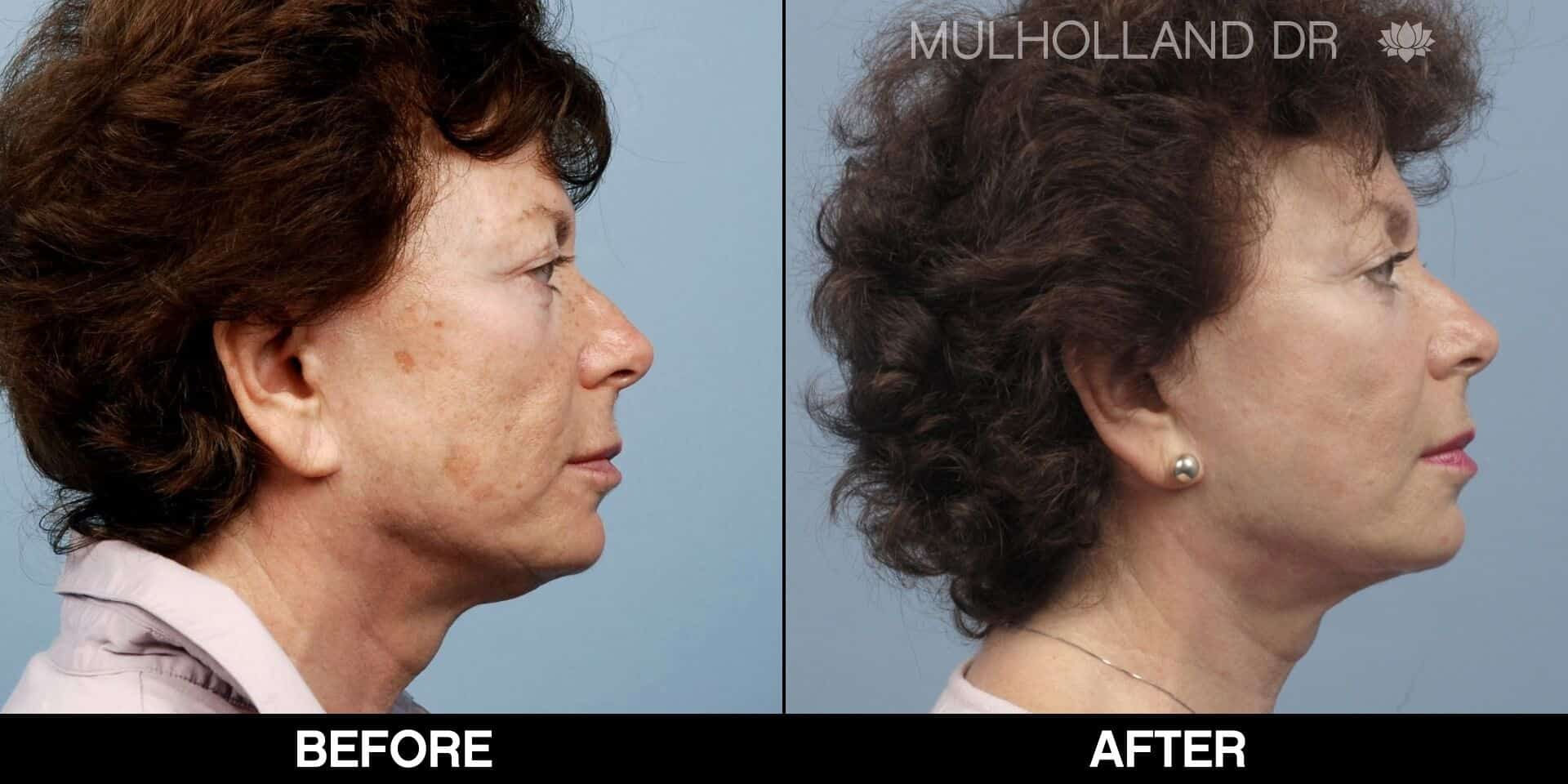 Laser Skin Resurfacing - Before and After Gallery – Photo 57