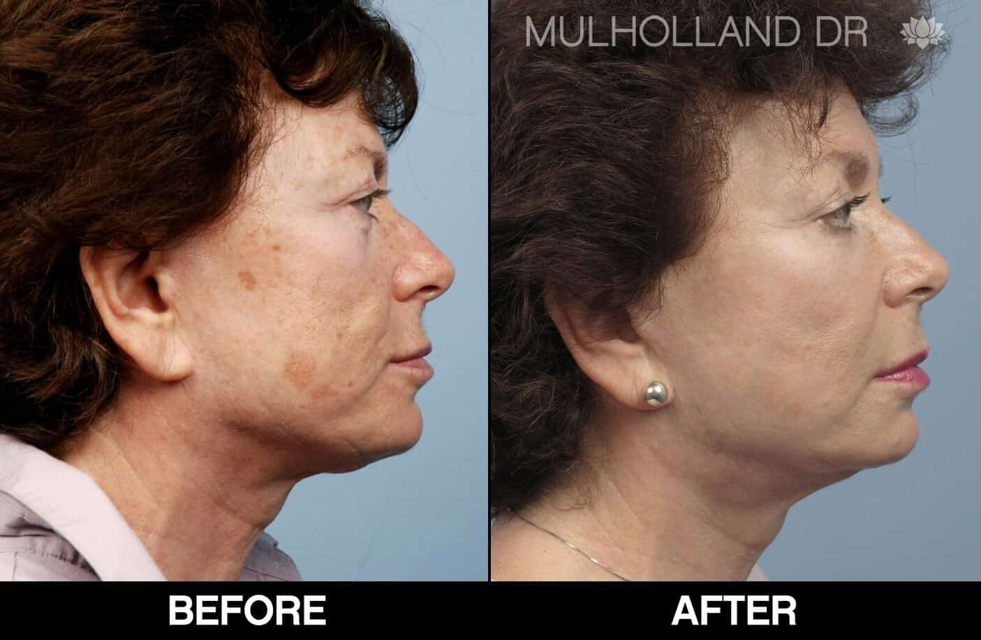 Laser Skin Resurfacing - Before and After Gallery – Photo 58