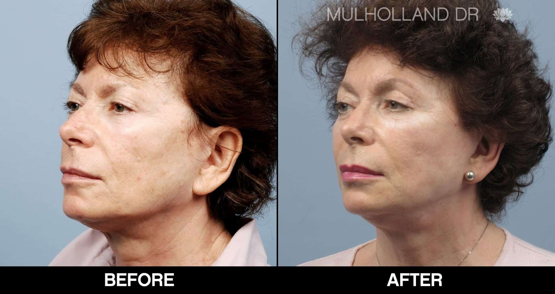 Laser Skin Resurfacing - Before and After Gallery – Photo 59