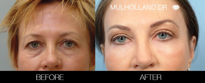 Laser Skin Resurfacing - Before and After Gallery – Photo 32