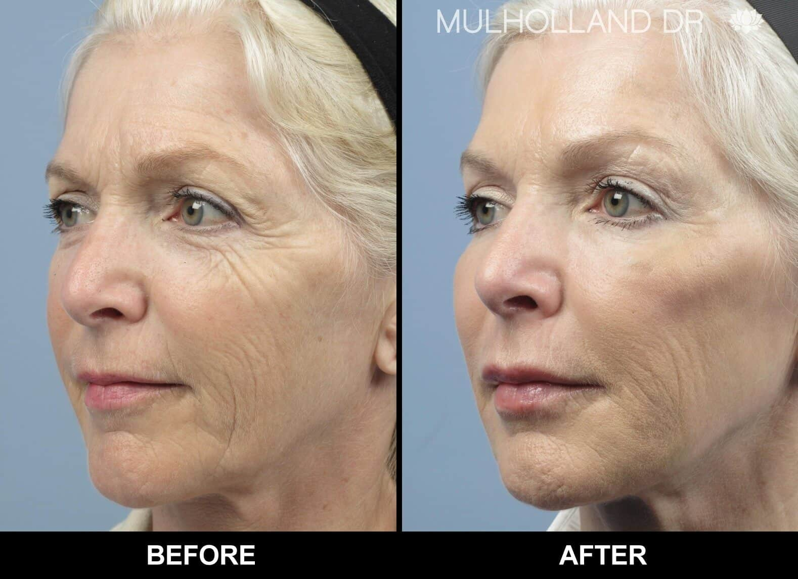 Laser Skin Resurfacing - Before and After Gallery – Photo 15