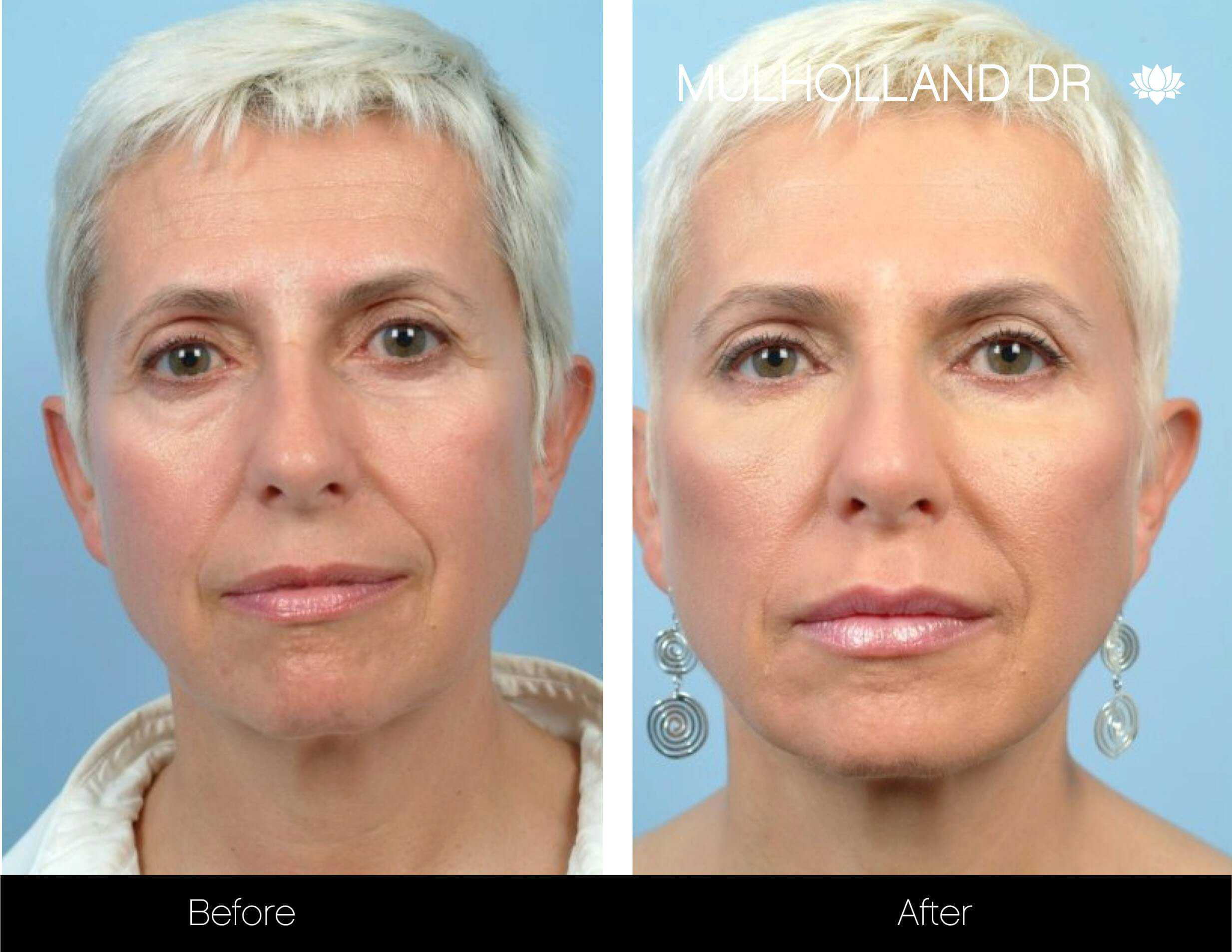 Lip Augmentation- Before and After Gallery – Photo 14