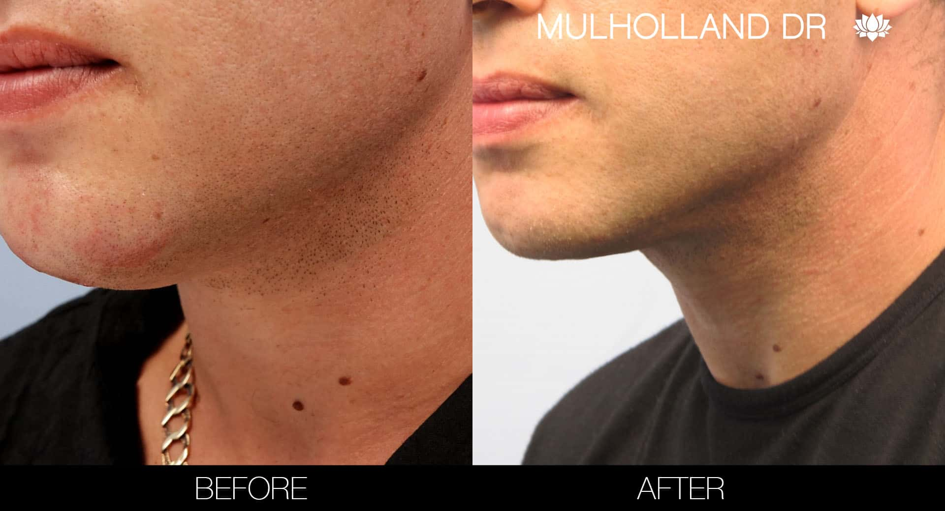Tumescent Liposuction - Before and After Gallery – Photo 108