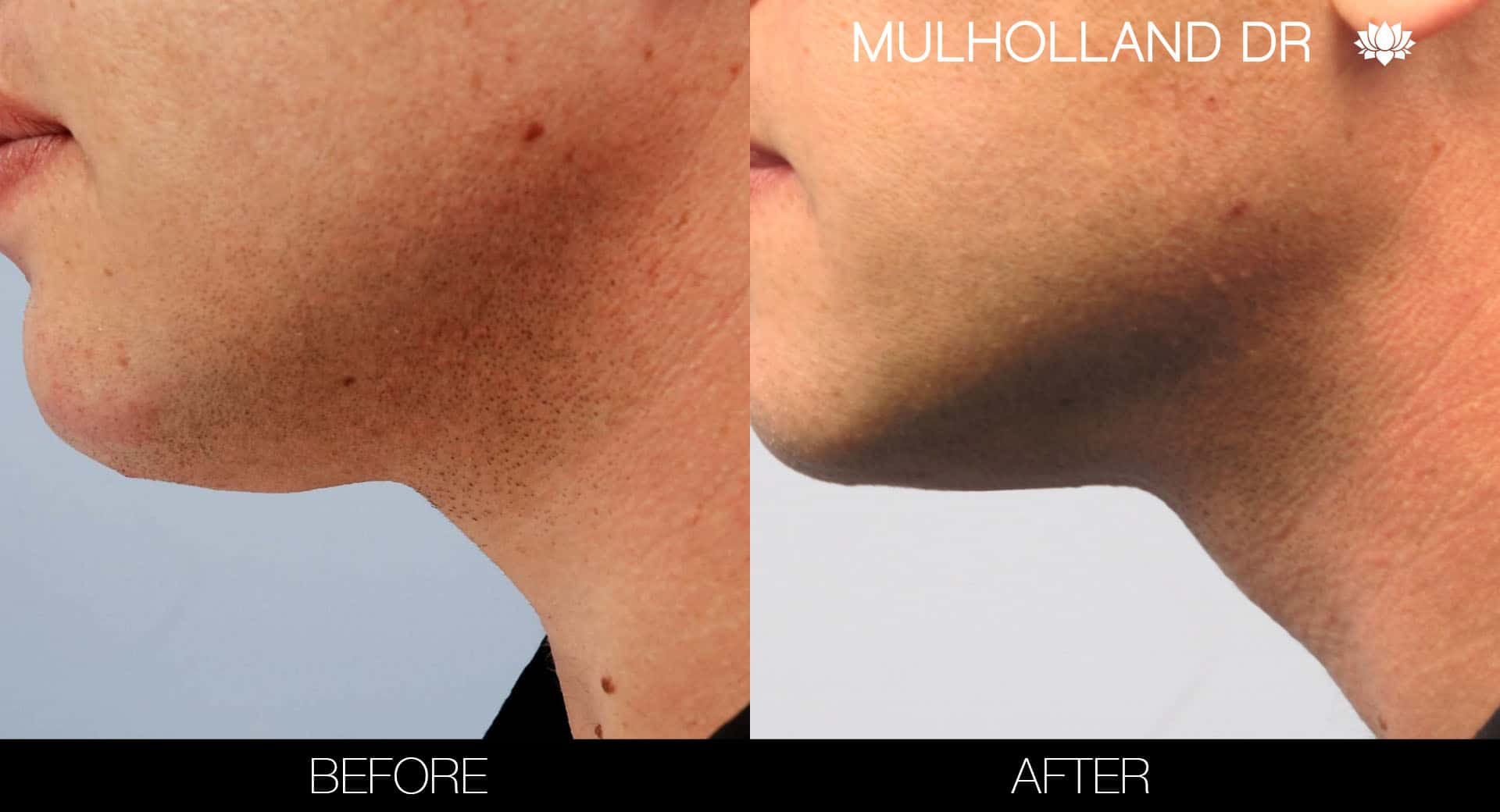 Tumescent Liposuction - Before and After Gallery – Photo 109