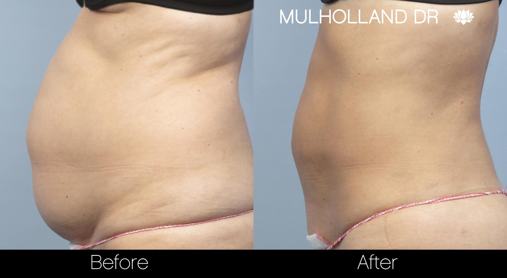 Tumescent Liposuction - Before and After Gallery – Photo 10