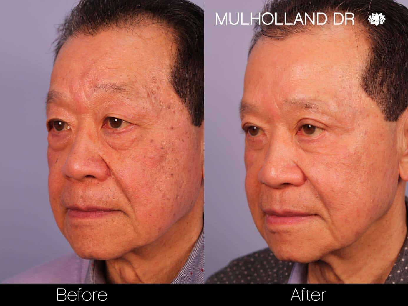Asian Blepharoplasty - Before and After Gallery – Photo 15