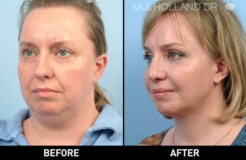 Facial Fat Transfer - Before and After Gallery – Photo 12