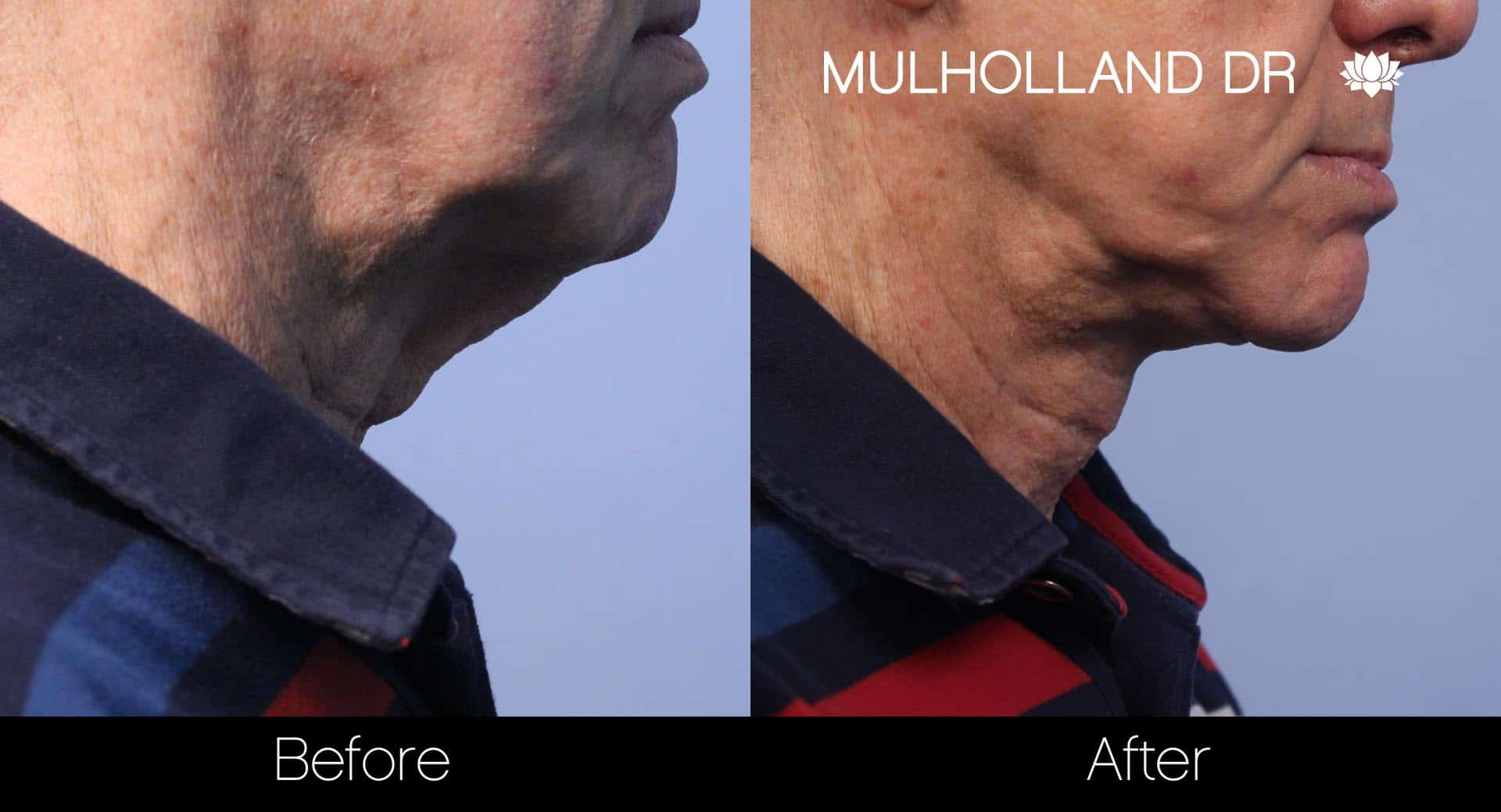 Tumescent Liposuction - Before and After Gallery – Photo 114