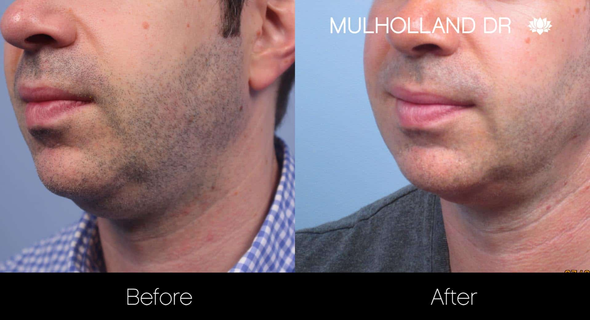 Tumescent Liposuction - Before and After Gallery – Photo 116