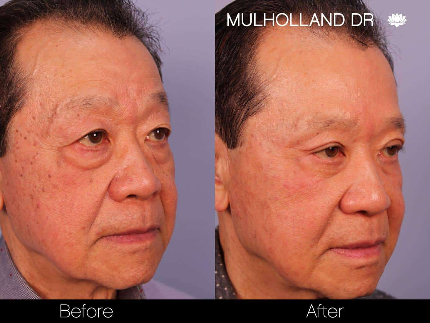 Asian Blepharoplasty - Before and After Gallery – Photo 16