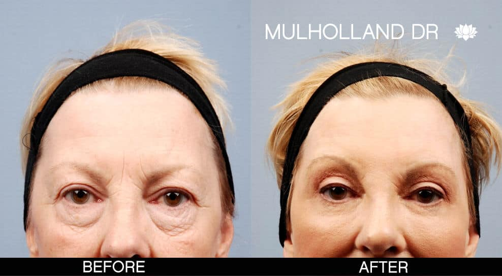 Brow Lift - Before and After Gallery – Photo 11