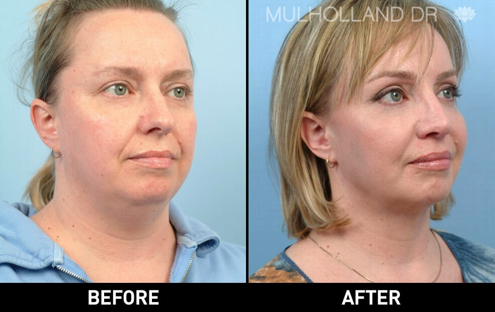 Facial Fat Transfer - Before and After Gallery – Photo 13