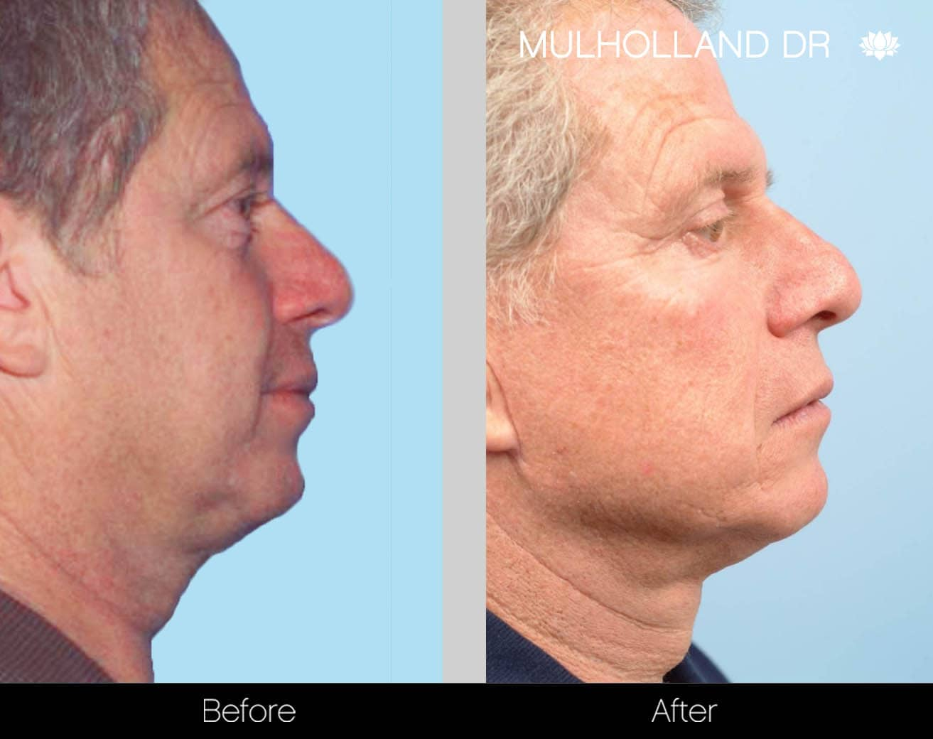 Tumescent Liposuction - Before and After Gallery – Photo 123