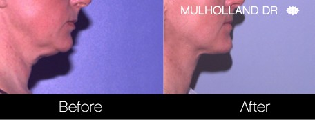 Tumescent Liposuction - Before and After Gallery – Photo 124