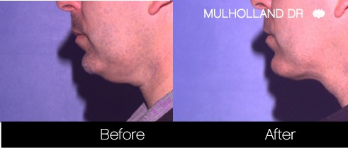 Tumescent Liposuction - Before and After Gallery – Photo 125