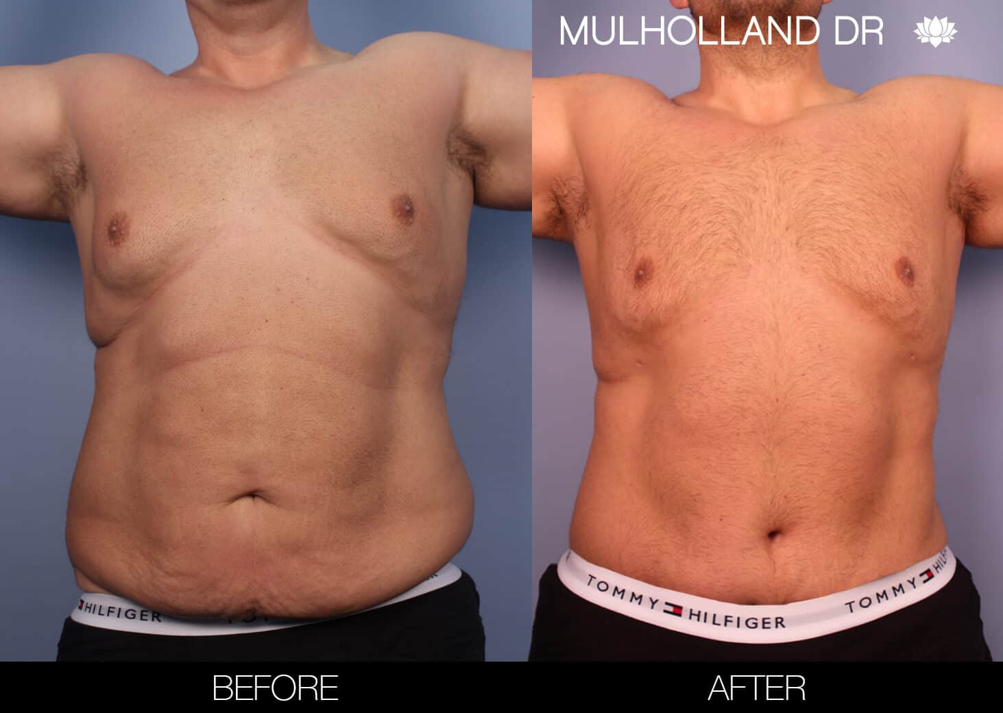 Male Tummy Tuck (Belt Lipectomy) - Before and After Gallery – Photo 21