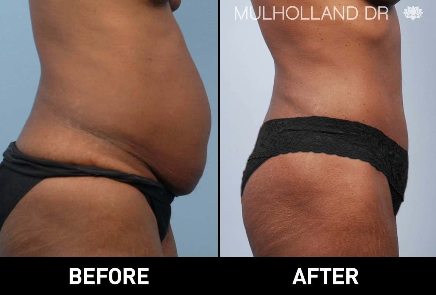 Tumescent Liposuction - Before and After Gallery – Photo 12