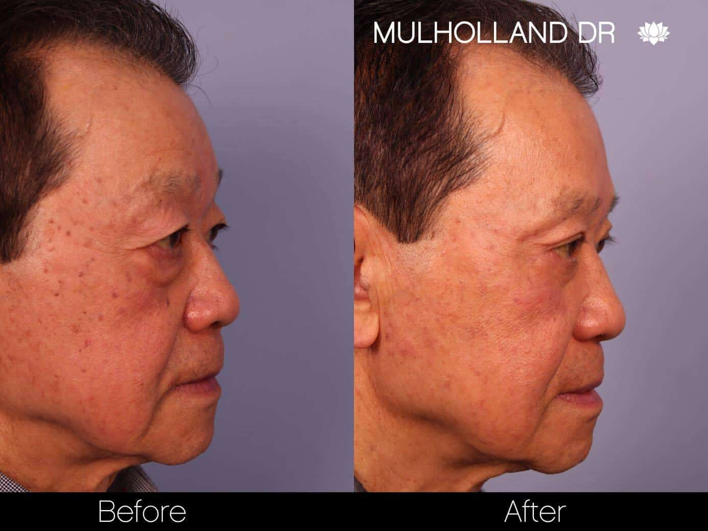 Asian Blepharoplasty - Before and After Gallery – Photo 17