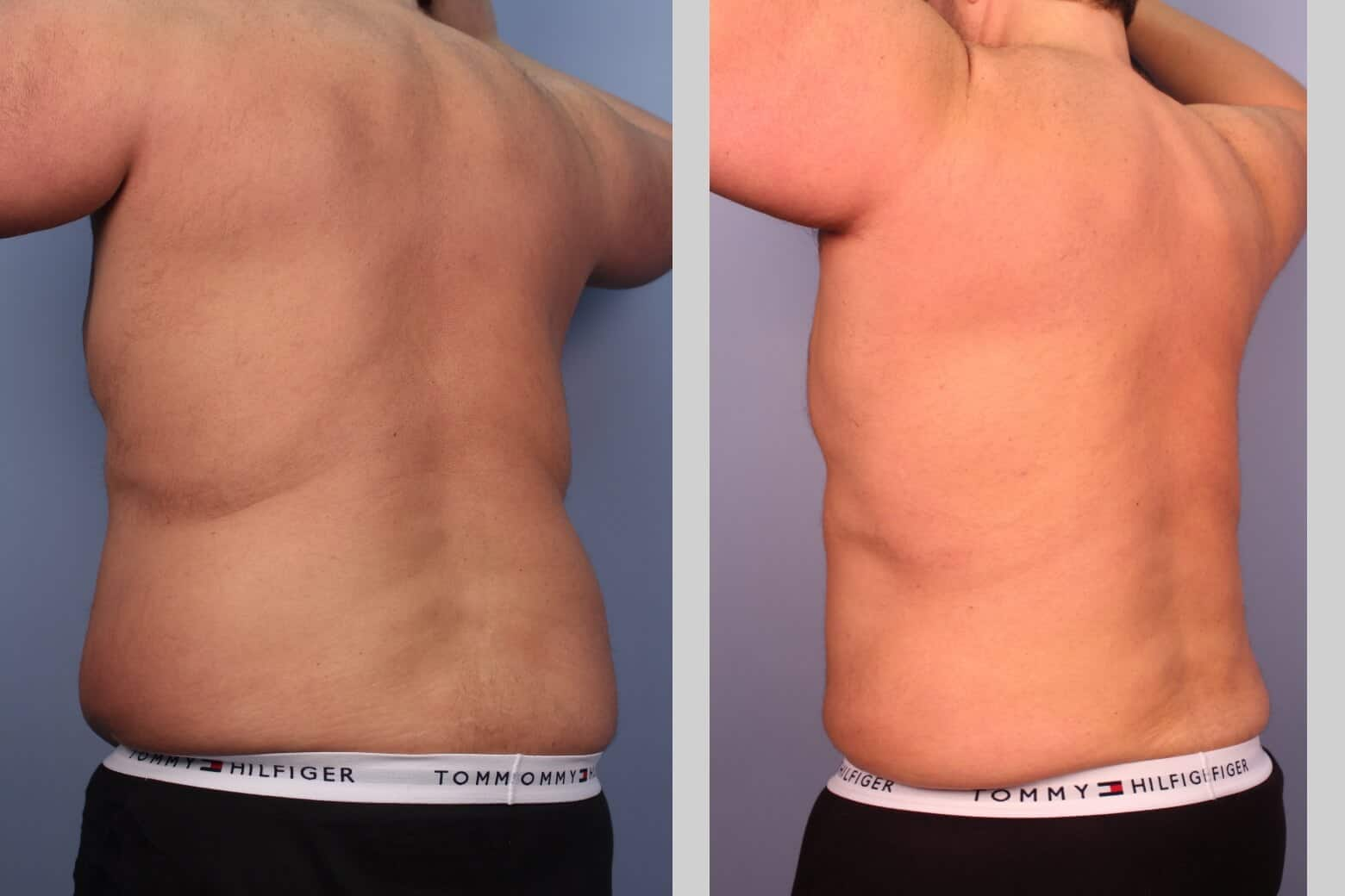 Male Tummy Tuck (Belt Lipectomy) - Before and After Gallery – Photo 23