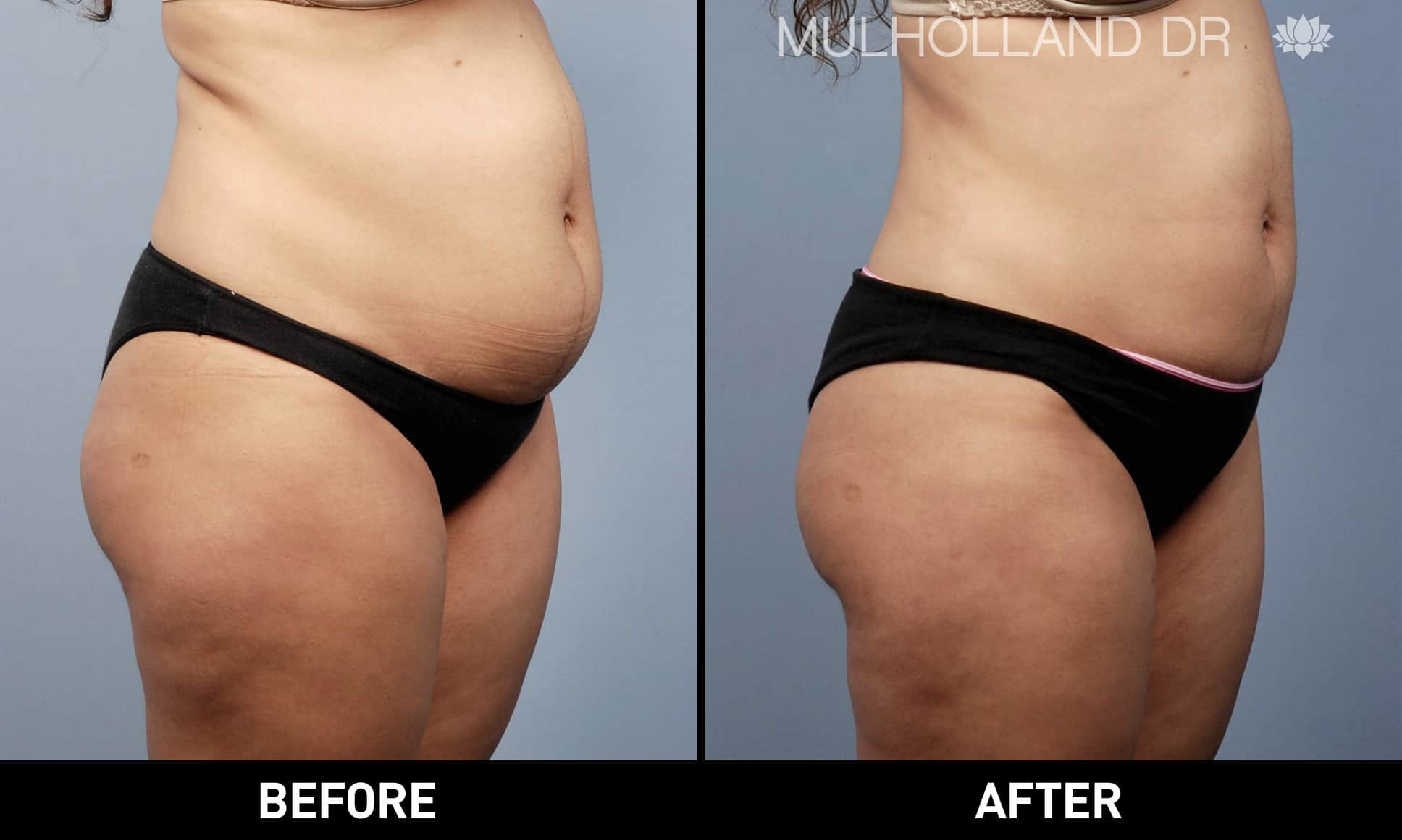 Tumescent Liposuction - Before and After Gallery – Photo 15