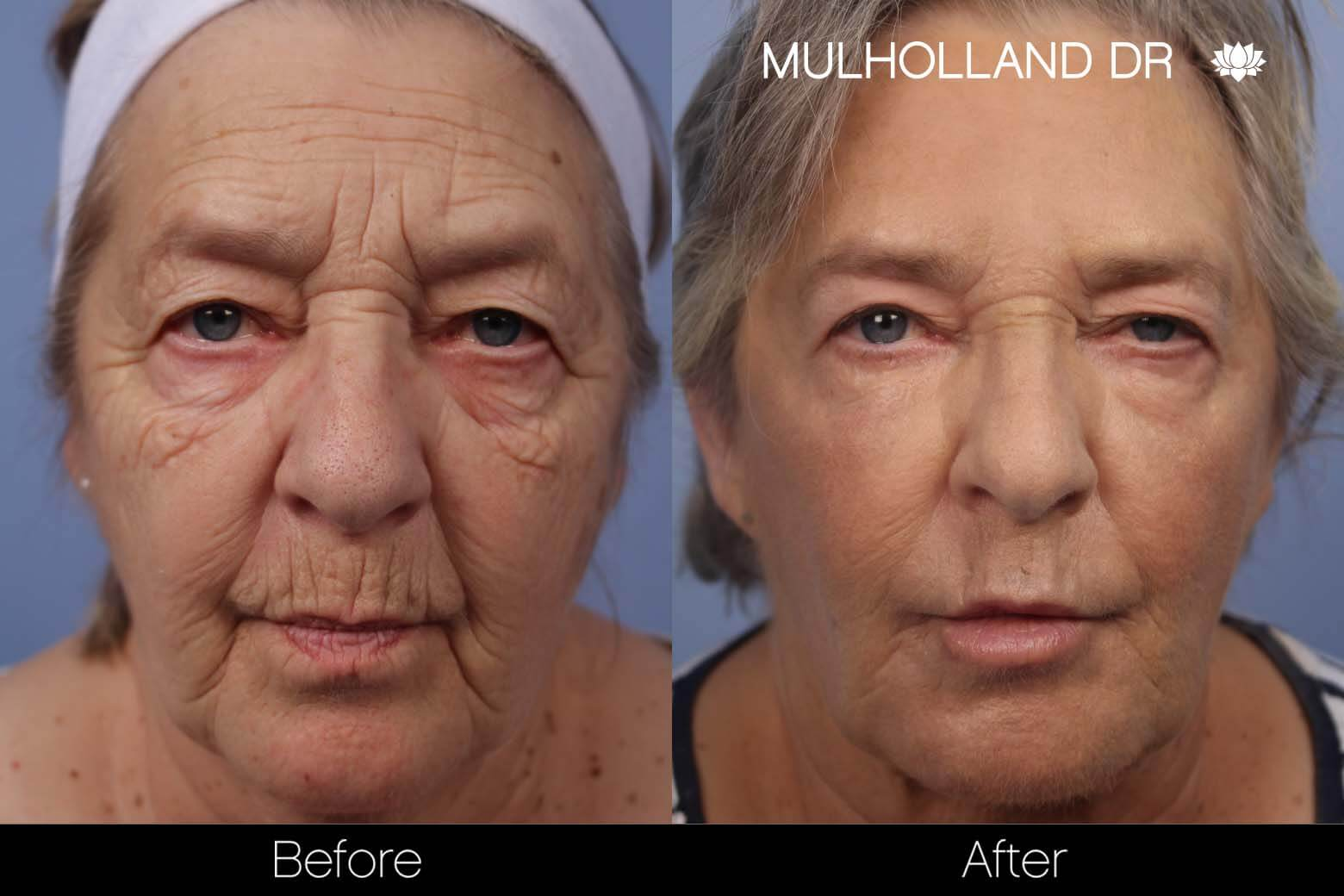 Facial Fat Transfer - Before and After Gallery – Photo 14
